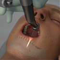 (Video) Yomi, The First Robotic Dental Surgery System Now Cleared by FDA