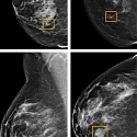 Google AI Beats Doctors at Breast Cancer Detection—Sometimes