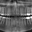 The End of Root Canals ?
