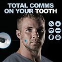 Molar Mic Puts a Wireless Comms System Inside the Mouth
