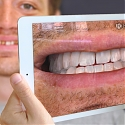 (Video) Augmented Reality for the Future of Dentistry - Kapanu