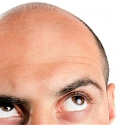 Baldness Breakthrough Uses 3D-Printed