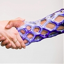 These Gel-Filled Casts are Breathable, Waterproof, and Look Cool - Cast21