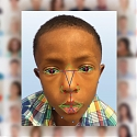 Facial Recognition Software Helps Diagnose Rare Genetic Disease